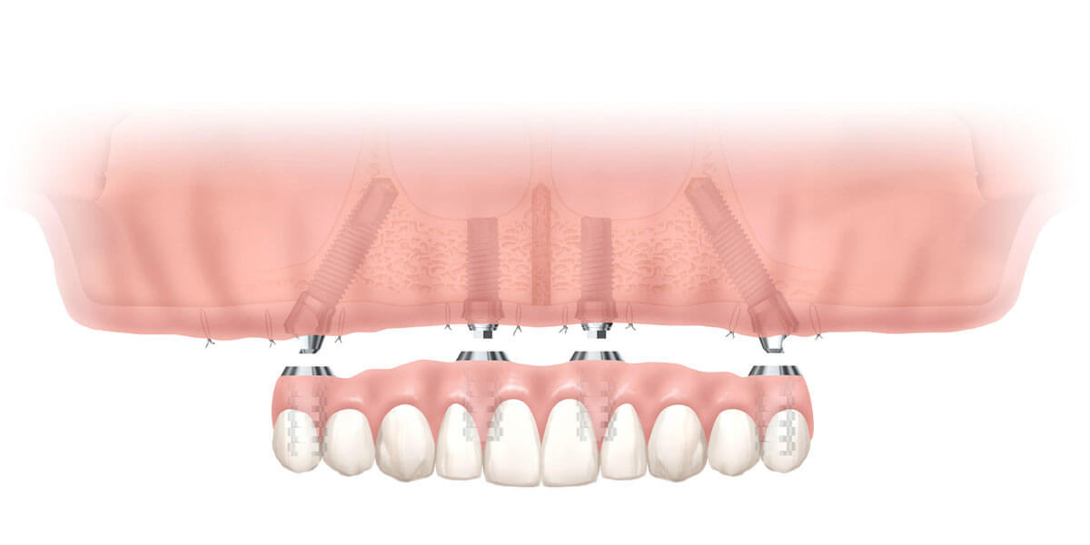 Mini Dental Implants in Plastic Model